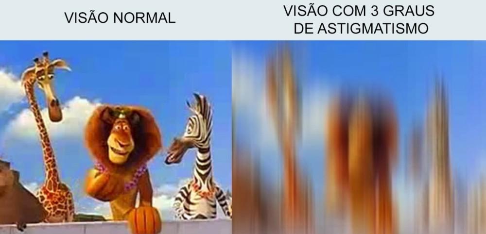 astigmatismo-02.jpg